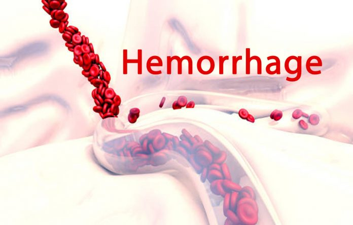 What Is Hemorrhage?